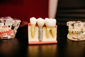 osiguranje za zube Njemačka